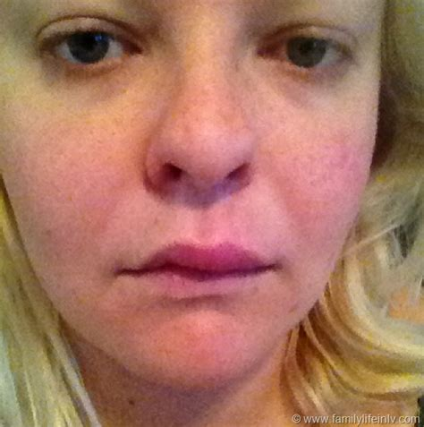 what can cause lips to swell and rash picture 15