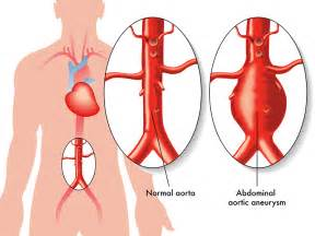 gastrointestinal bleeding ociated with aortic aneurysm picture 2