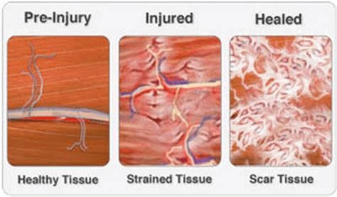 acute muscle tear picture 6