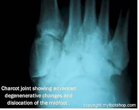 charcot's joint information picture 13