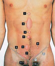 intestinal blockage noise human picture 15