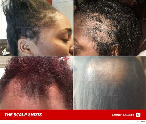 danger of hair relaxers picture 3