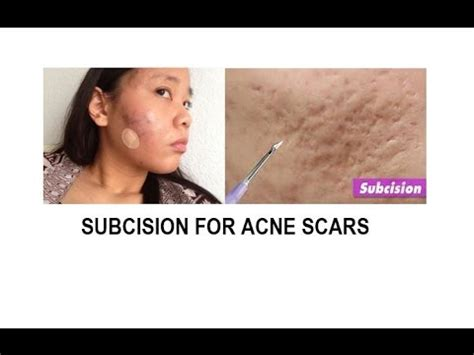 subcision acne scars california picture 11
