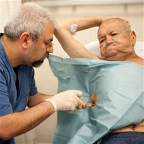 Patient refuses to have surgery for colon cancer picture 9