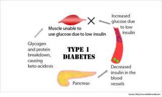 type 1 diabetes 2014 picture 2