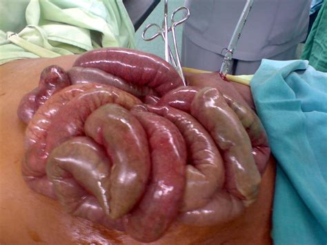 ischemic bowels picture 1