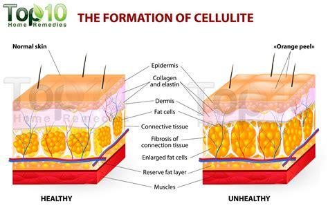 fat cellulite picture 14