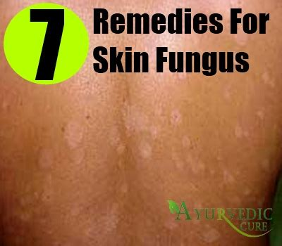 cures for skin fungus picture 1
