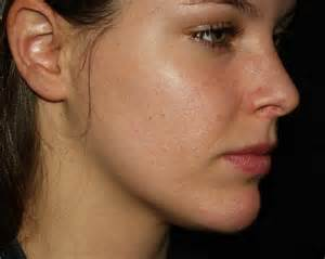 acne only on face picture 7