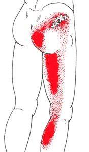 back ache leg pain picture 11