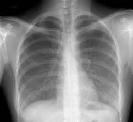 alveolitis picture 2