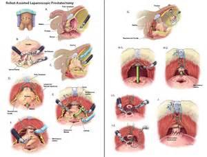 Laparoscopic prostatectomy picture 1