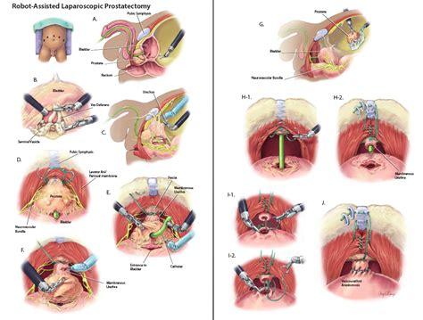 Laparoscopic prostatectomy picture 6