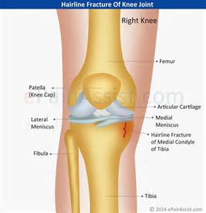 knee joint pain its remedy in tib e picture 3