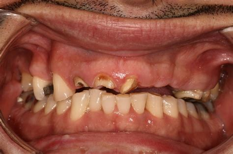 all teeth picture 13