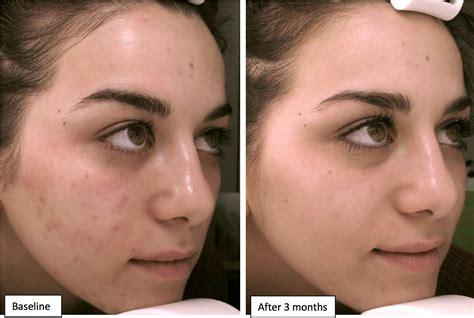 vicks vapor rub cystic acne picture 6
