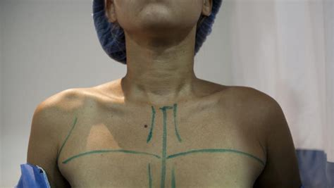 breast augmentation 411 picture 2
