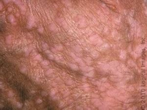 genital warts infected penis picture 13