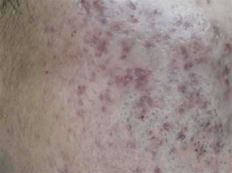acne scars message board picture 5