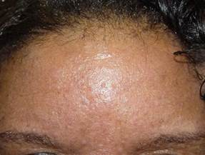 rosacea and mites picture 5