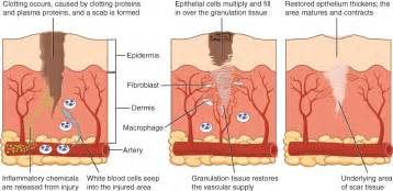 scar tissue on el skin picture 7