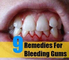 treatment for healthy gums and teeth picture 13