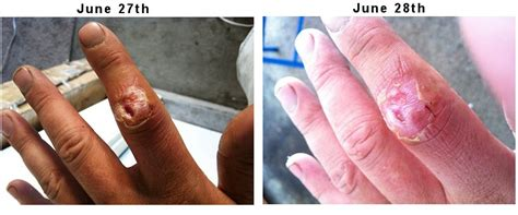 skin infection on knuckle picture 3