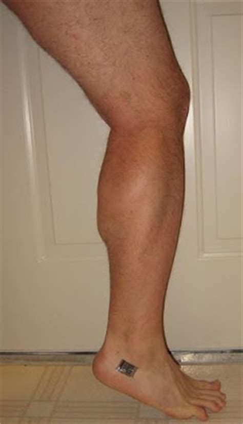 muscle spasm in calf picture 7