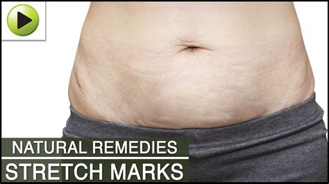 apple cider cure stretch marks picture 10