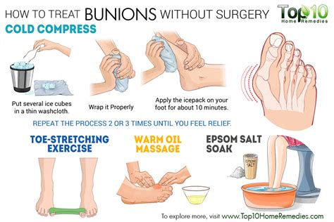 are you put to sleep for bunion surgery picture 2