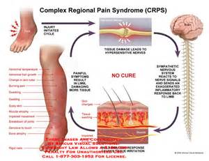 sciatica symptoms boils, skin inflamation picture 14