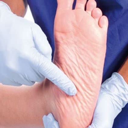 foot problems in diabetics picture 3