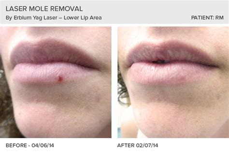 skin removal surgery picture 5