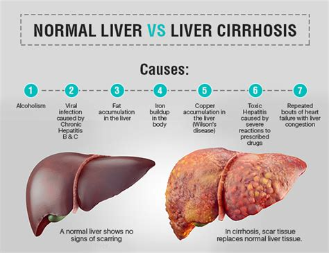chronic liver disease skin disorder name picture 9