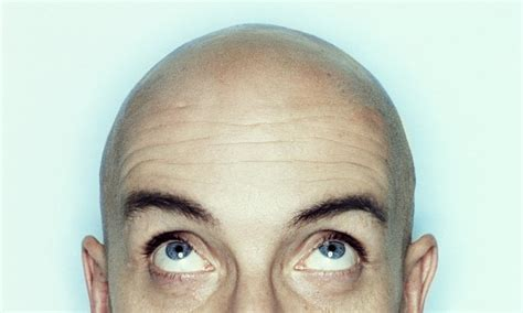 new baldness cure breakthroughs 2014 picture 10