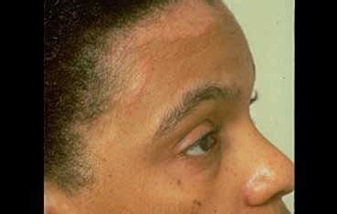 african american hair care dandruff picture 13
