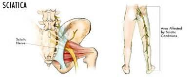 sciatica picture 3