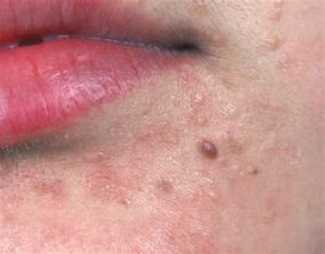 wart removal on face picture 9