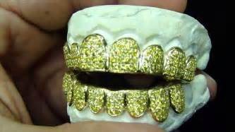 gold diamond cut teeth picture 1