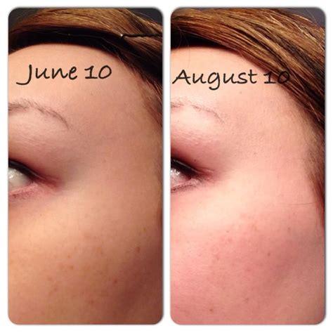 acne and vitamin e picture 11