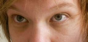 gamot sa skin allergy picture 6
