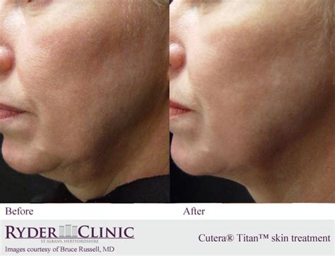 skin tightening treatment the an picture 6