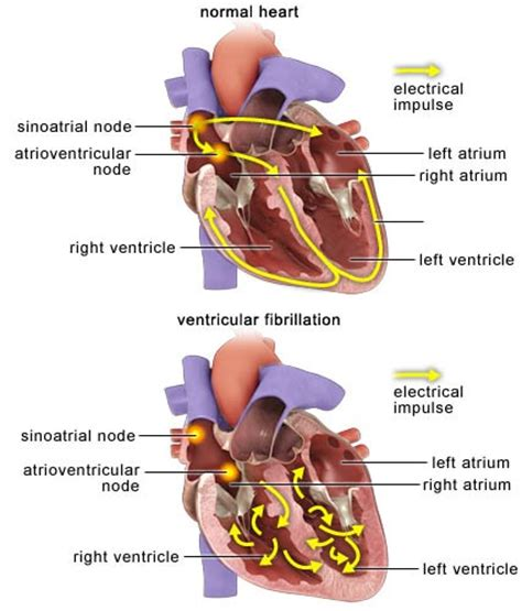 herbal cures for tachycardia picture 5