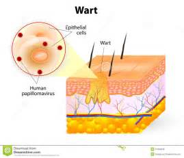 genital wart picture 3