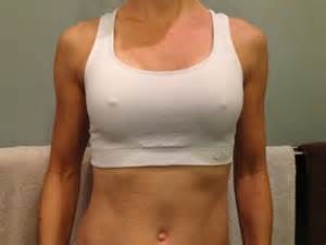 day four post op breast augmentation picture 15