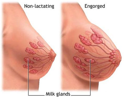 breasts before after pregnancy pictures picture 7