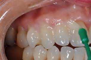 fluoride treatment for teeth picture 5