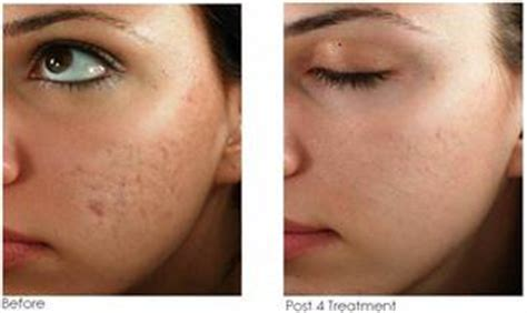 needling for acne scarring picture 9