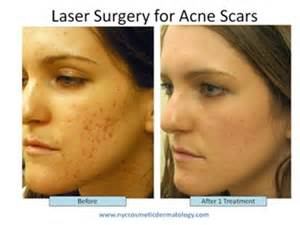 co2 laser acne scar treatment picture 2