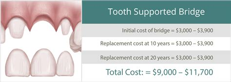 cost of a bridge teeth picture 2